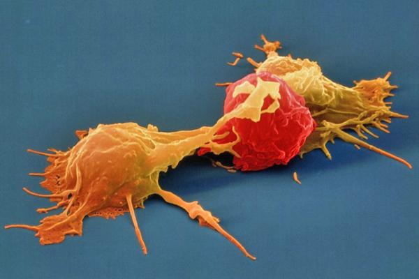 Universidad de Ginebra: Linfocitos T permiten reducir el tamaño de tumores cancerígenos