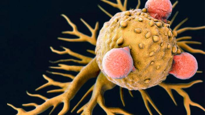 Relación entre la obesidad y el cáncer