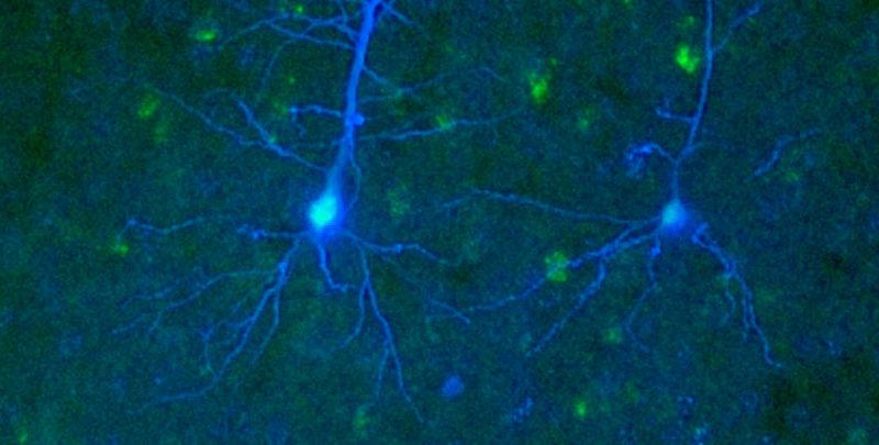 Descubren nueva forma de comunicación neuronal