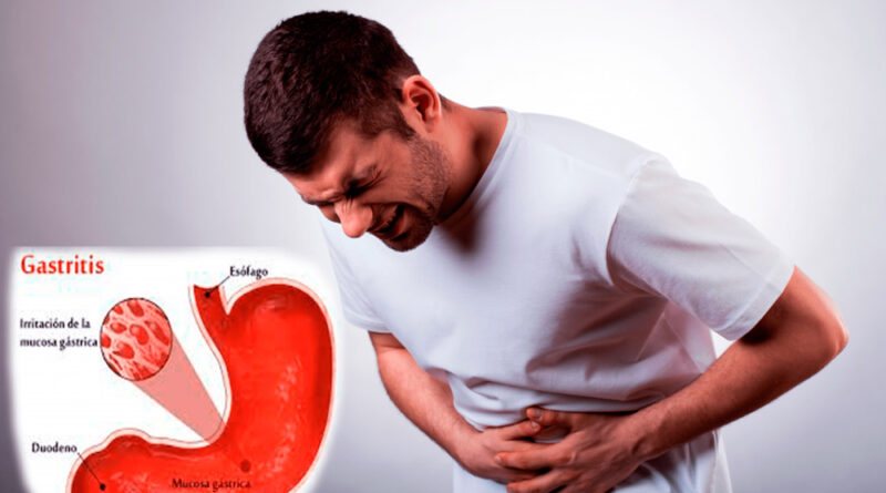 ¿Qué es la gastritis? Causas, diagnóstico y tratamiento